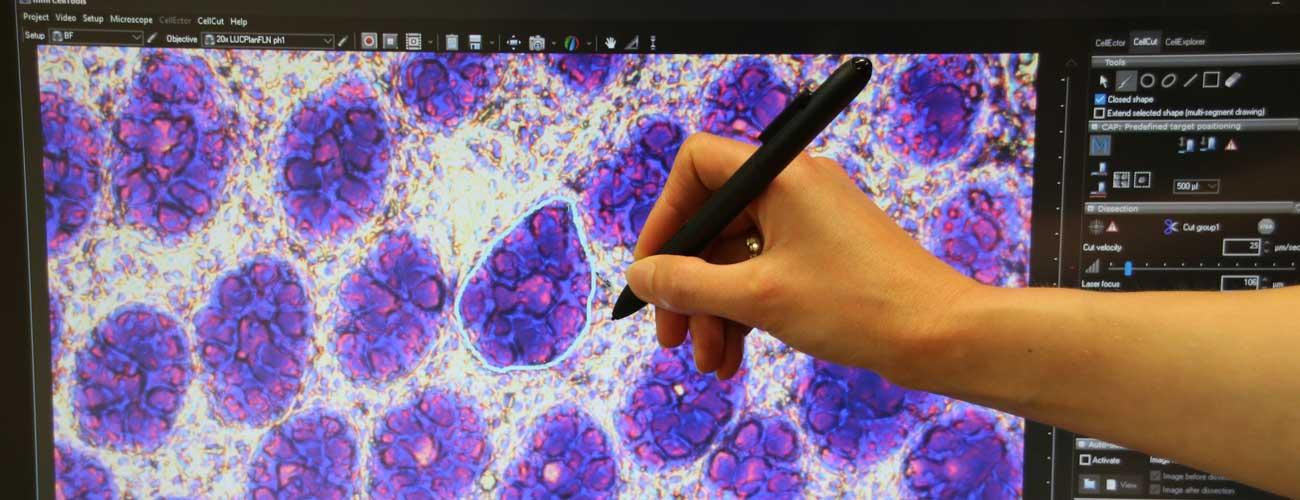 MMI Molecular Pathology